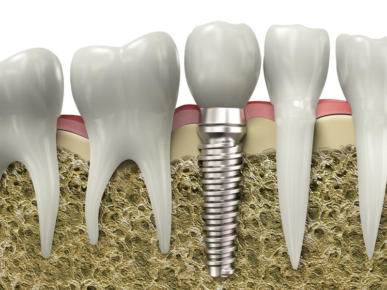 Why Dental Implants is the Ultimate Solution?